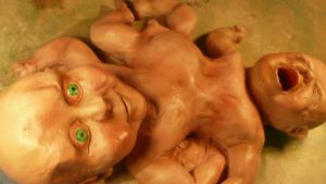 Conjoined babies...from...from home by DreamWeaverMasks