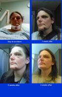 Accident - face progress by lethe-gray