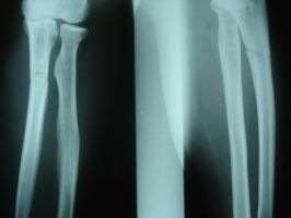 Arm Bones 6785644 by StockProject1
