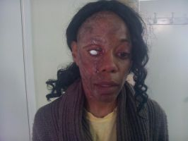 Burn/Scarred Victim: Debra Wilson by thefxfox