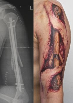 broken arm tattoo by graynd