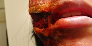 Bloody Mouth Slit Closeup. II by BabsxStock