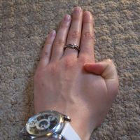 Left hand flexible thumb by CuriousPeaches