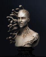 I-medusa by Intervain