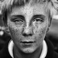 Freckles by Marteline
