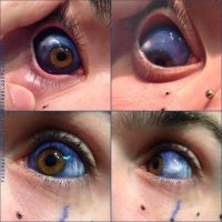 Eyeball, sclera tattoo by TheChristOff