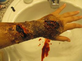 Infected Arm. by BabsxStock