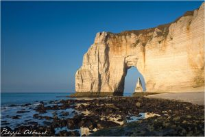 The Door and the Needle by Philippe-Albanel