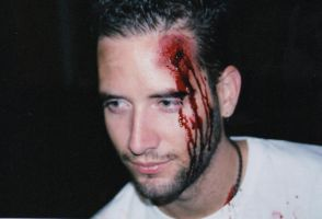 'Jared's' head wound bloody by bathory-babe