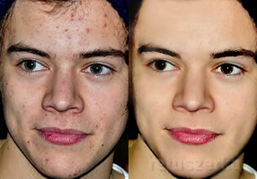 How to remove acne - perfect skin retouch by Retuszerka