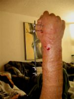 My MRSA Infected arm by Decarabia69