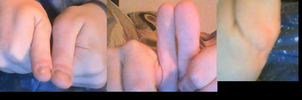 My deformed thumb by hydranoid2009