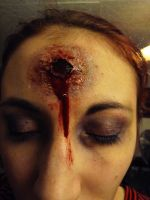 Gunshot wound and black eye by MorningGlory34