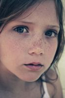 Freckle Face.XxX by Pretty-As-A-Picture
