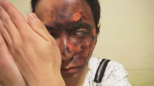 - Liquid Latex Burn - Makeup3 by KisaMake